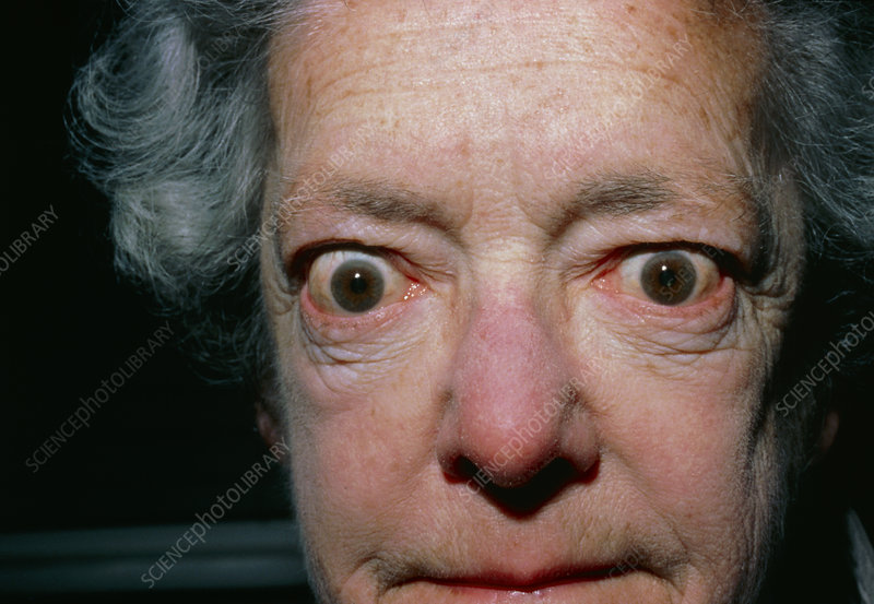 Exophthalmos Bulging Eyes Due To Thyroid Disease Stock Image