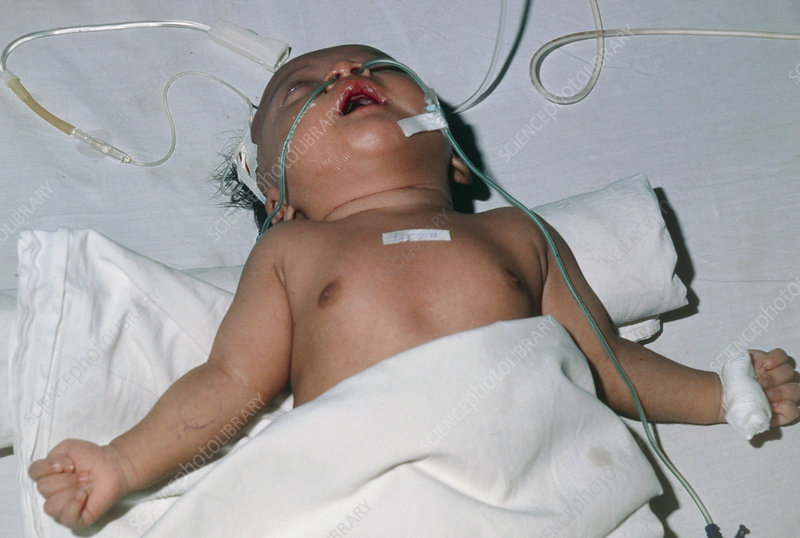 Baby in hospital with tetanus, muscle spasm