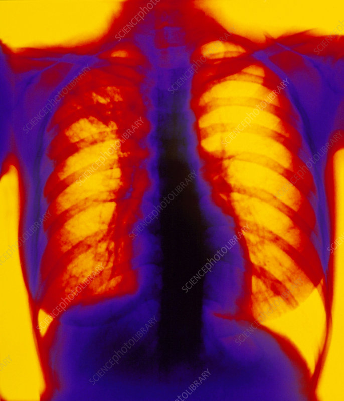 Coloured X-ray showing pulmonary tuberculosis