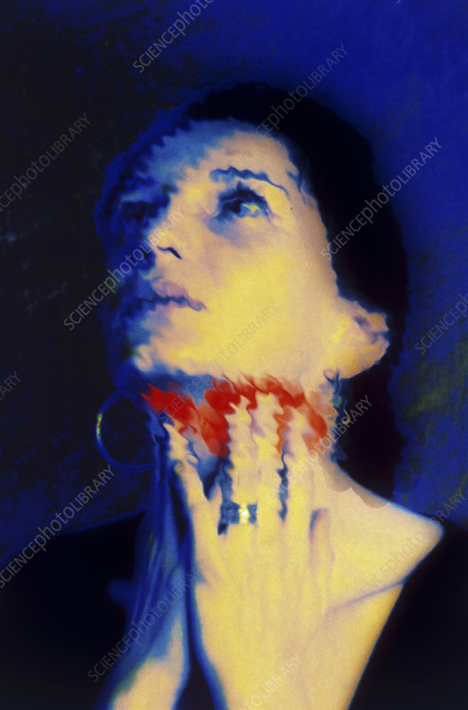 Abstract image of a woman in pain from tonsillitis