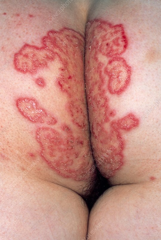 Woman's buttocks showing tinea (fungus) infection