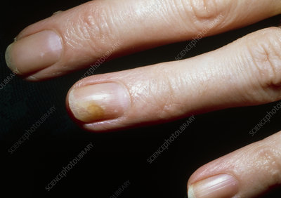Tinea fungal infection of a woman's fingernail