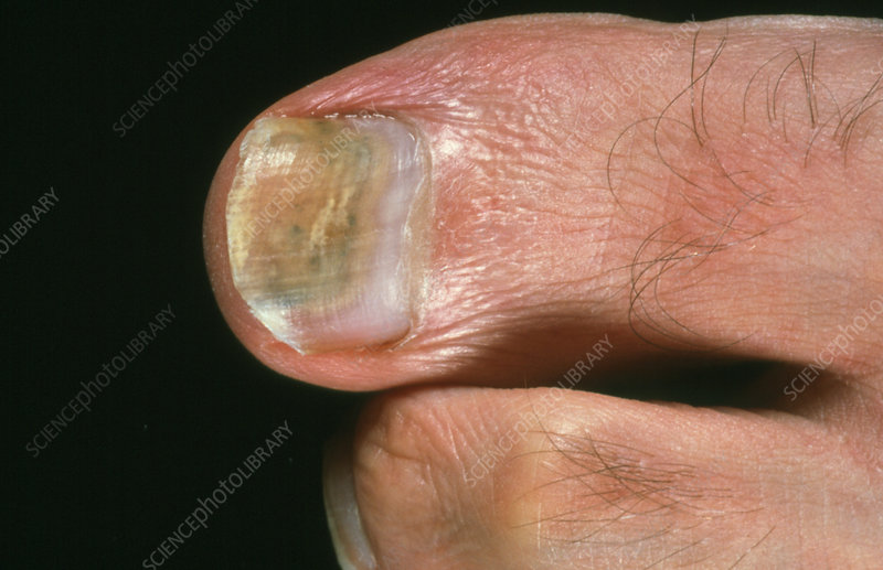 Toenail midway through fungal infection treatment