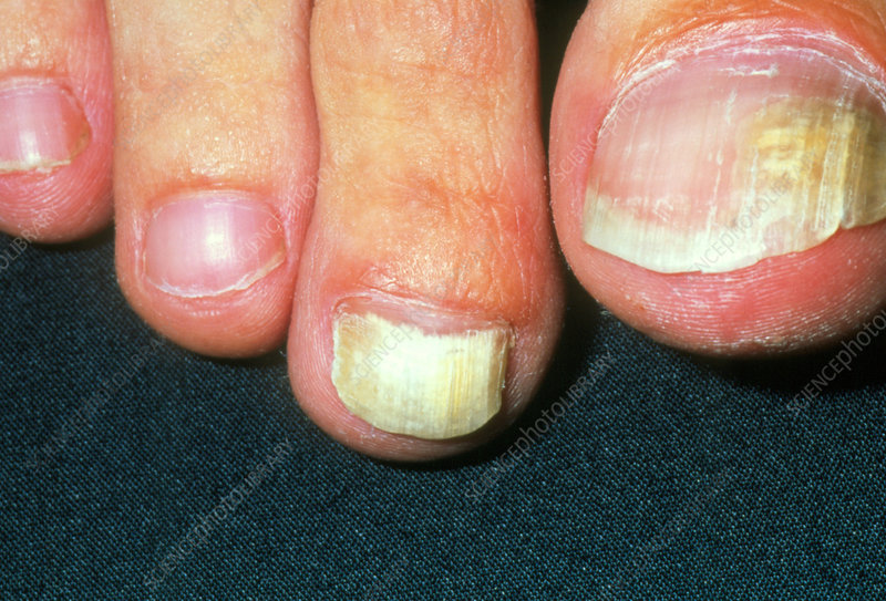 Toenails Showing Tinea Unguium Fungal Infections