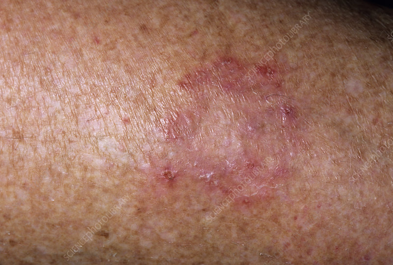 how to get rid of ringworm in humas