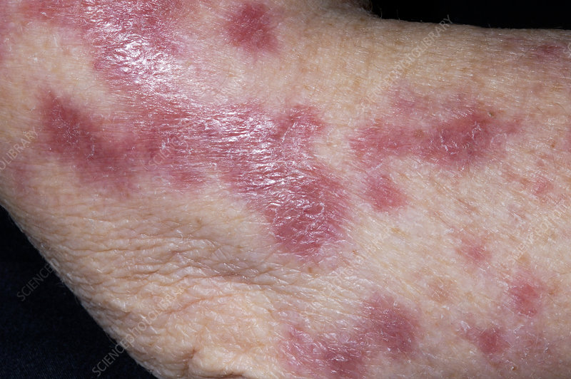Cutaneous tuberculosis