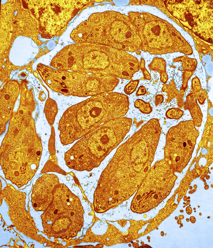 Toxoplasma parasites in a cell, TEM