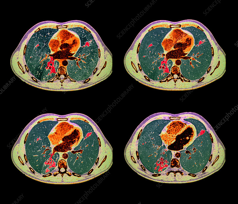 Tuberculosis, CT scans