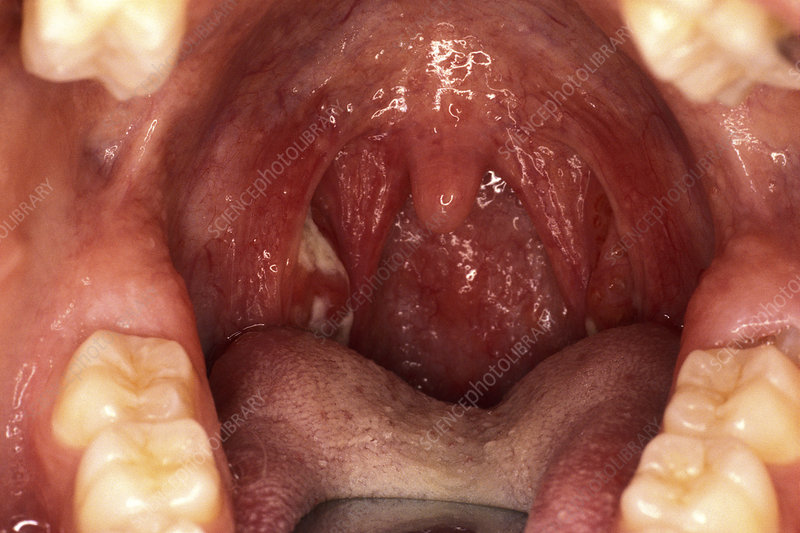 Ulcerated tonsils, throat examination