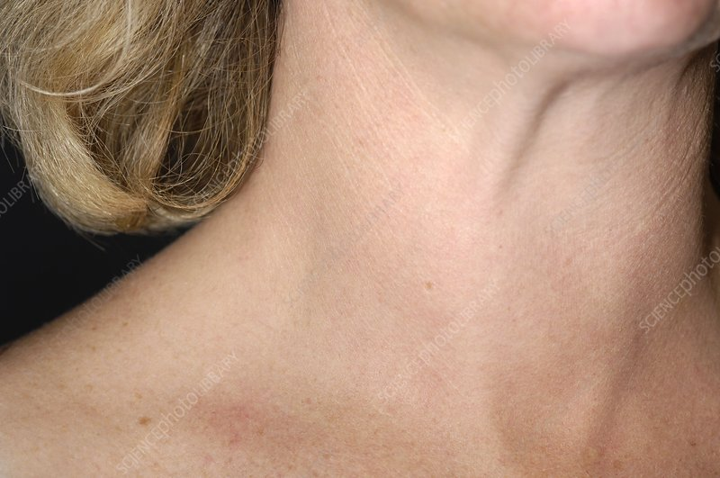 Swollen Thyroid Gland In Thyroiditis Stock Image M270 0361
