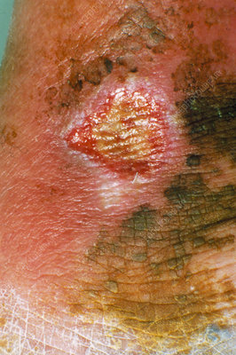Close-up of a varicose ulcer
