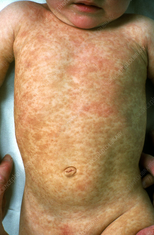 3 Ways to Treat Hives in Children - wikihow.mom