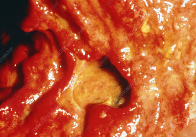 Close-up clinical shot of duodenal ulcer