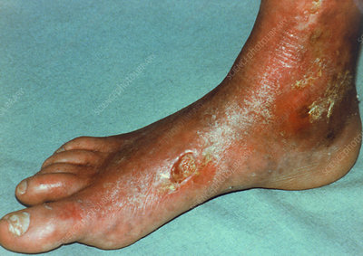 Clinical photo of healing diabetic ulcer