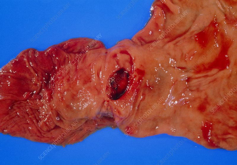 Bleeding gastric ulcer in excised part of stomach