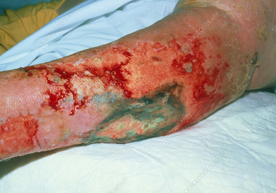 Varicose ulcers affecting the lower leg