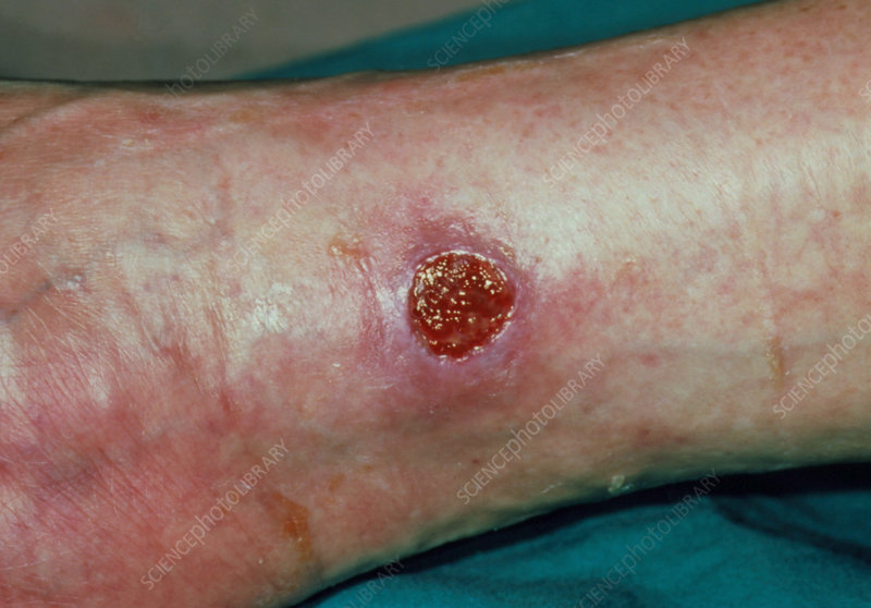 Close up of ankle showing venous ulcer