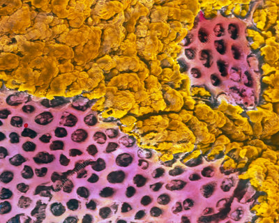 Coloured SEM of gastric ulceration in a human