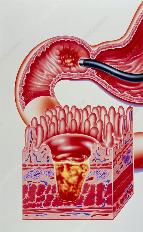 Artwork of duodenal ulcer with magnified view