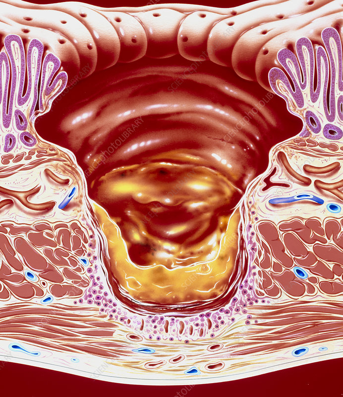 Artwork showing close-up of gastric ulcer