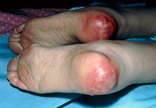 View of heels developing bedsores