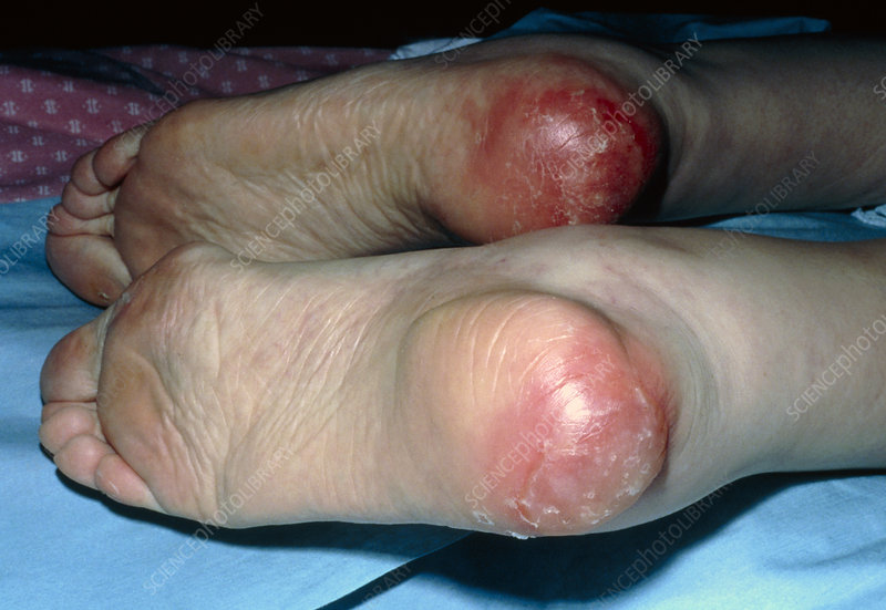 Can Stage  Bed Sores Be Treated