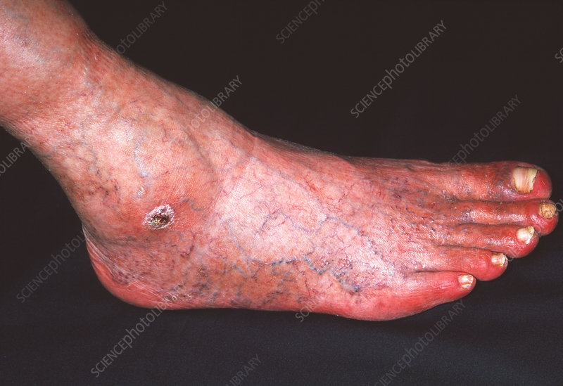 Arterial ulcer - Stock Image - M280/0169 - Science Photo..