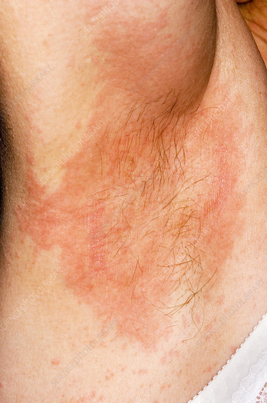heat rash on face pictures. heat rash on face treatment.