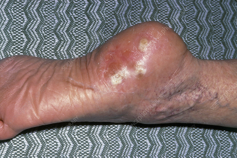 Verrucae affecting heel of the foot