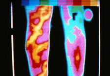Thermogram of back leg showing varicose veins