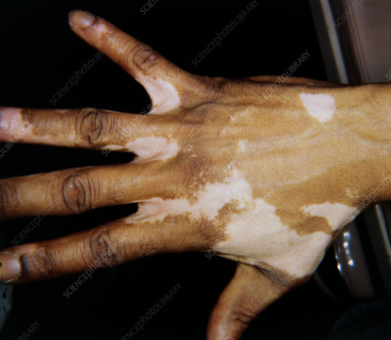 Vitiligo - a skin disease affecting right hand