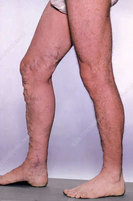 Varicose veins affecting legs and feet of male