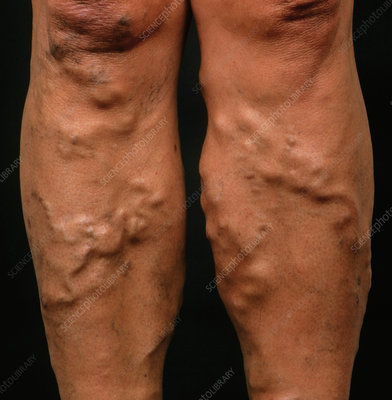 Varicose veins on a woman's legs