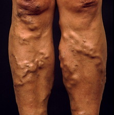 Varicose veins on a woman's legs below the knee