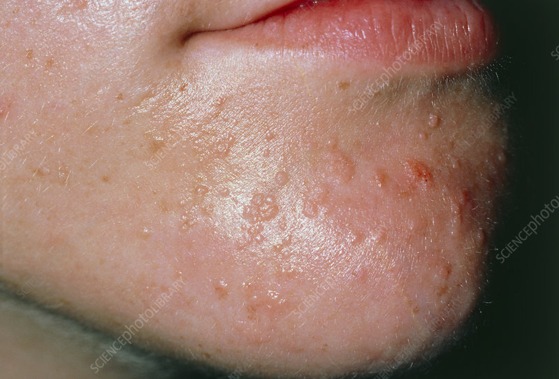 common wart images. Common warts on boy#39;s chin