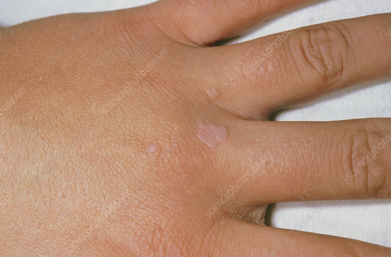 Common warts on the hand