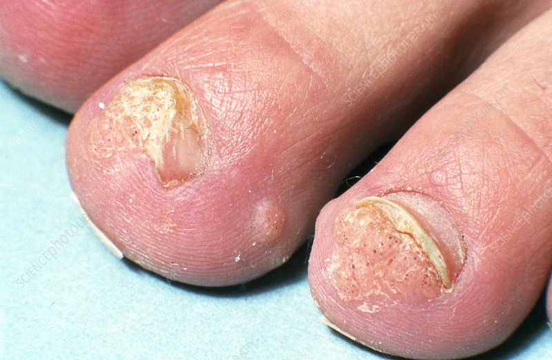 Warts on young man's toes