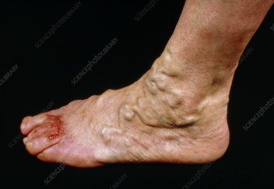 Varicose veins on the foot with ulceration of toes