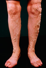 Varicose veins on the legs with ulceration of toes