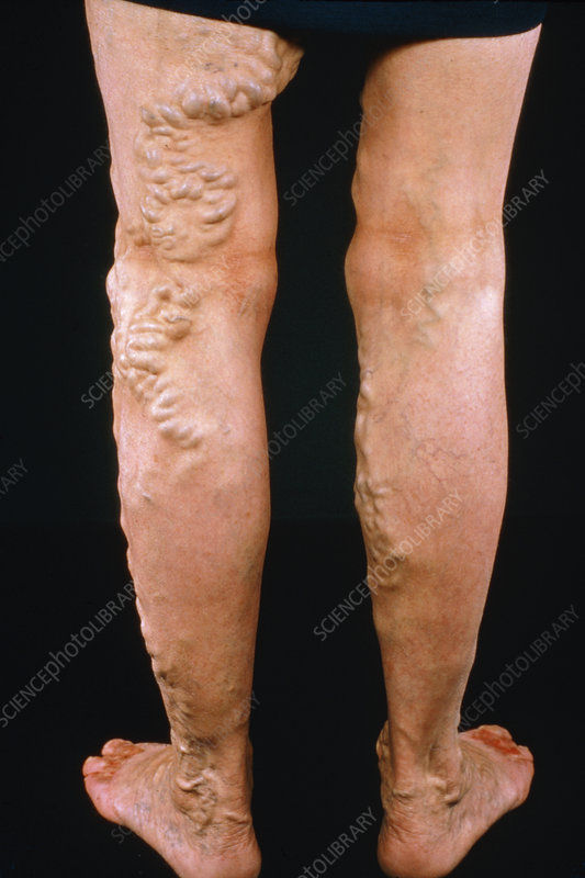 Varicose veins with ulceration of toes