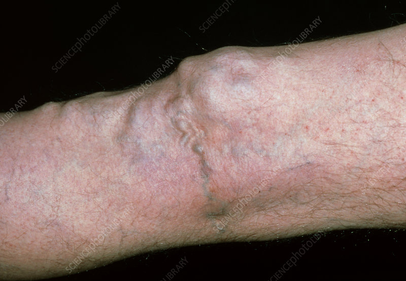 Varicose veins around the knee