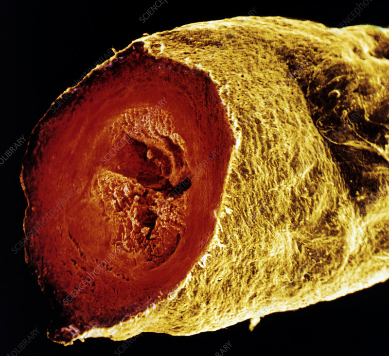 Colour SEM of a sectioned varicose saphenous vein