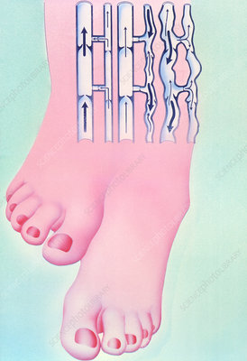 Artwork of legs with healthy and varicose veins