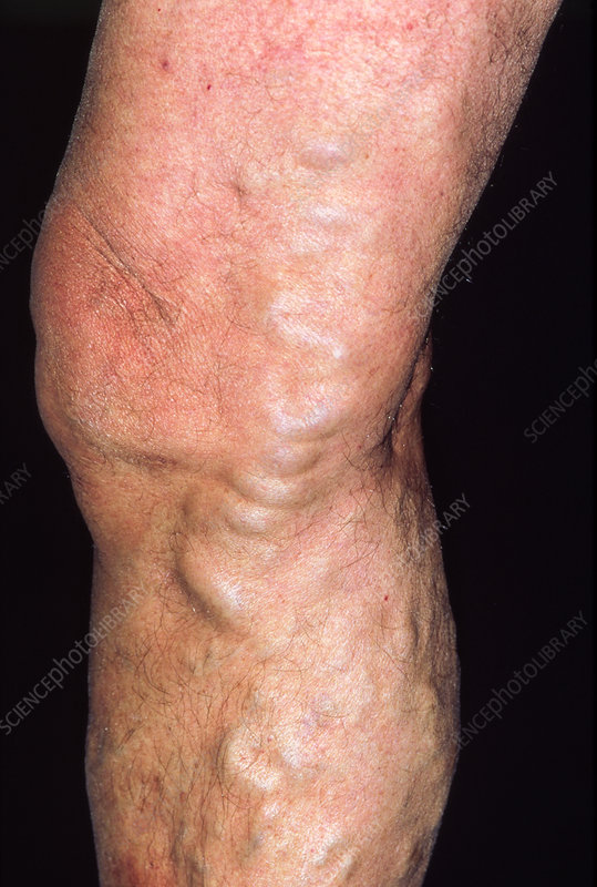Varicose veins affecting the leg of an elderly man