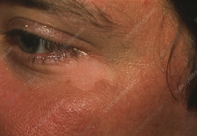 Vitiligo seen next to an eye