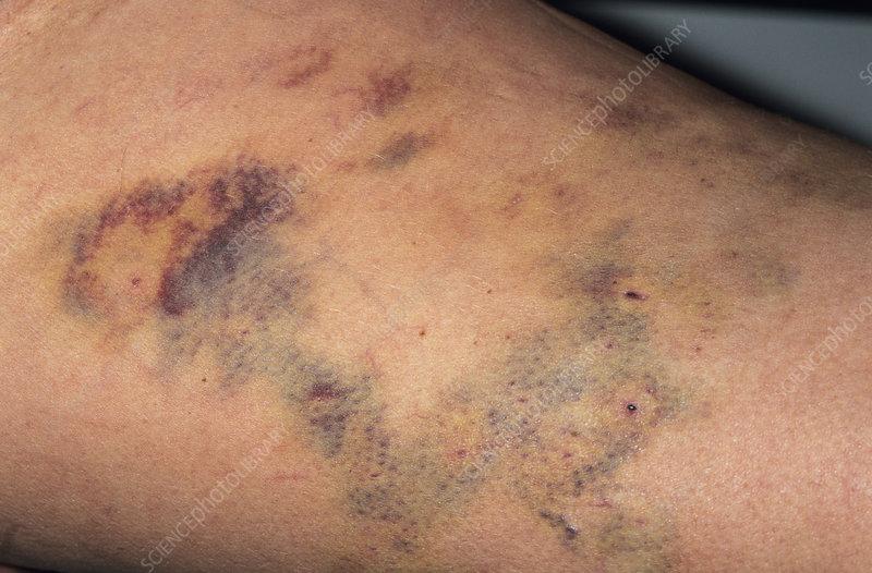 hematoma varicose vene)