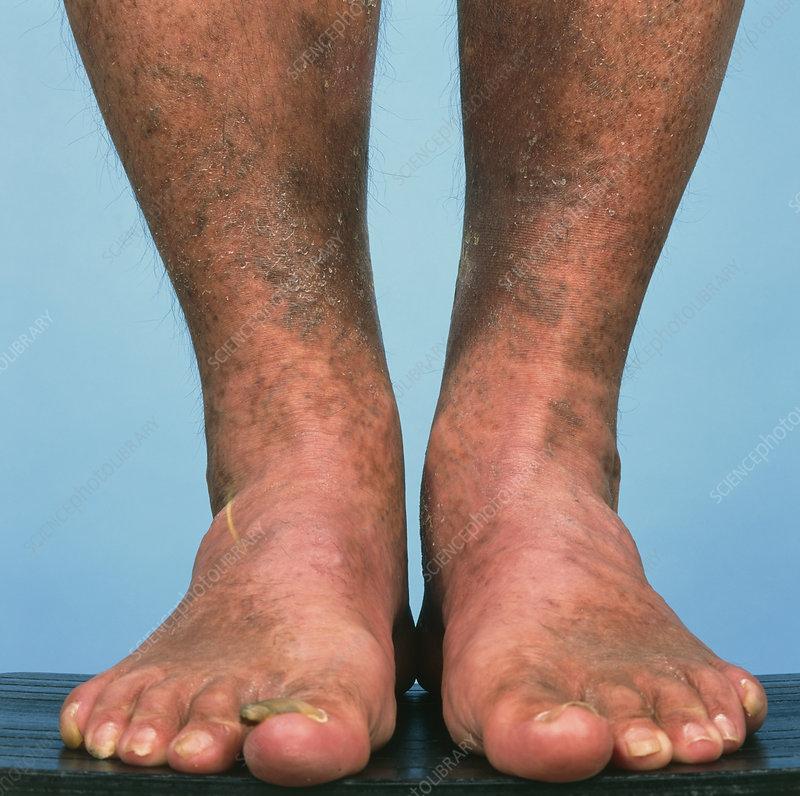 varicose veins bruising