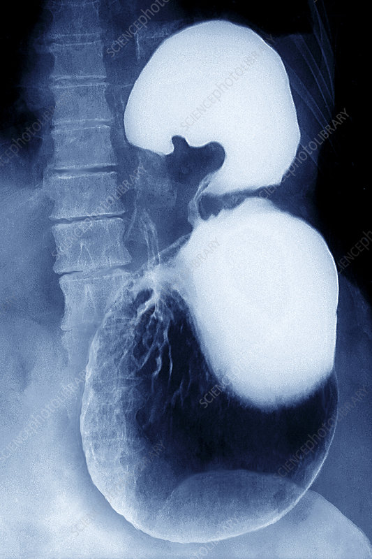 Volvulus of the stomach, barium X-ray
