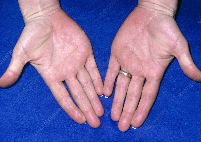 Hands of person suffering from xanthaemia