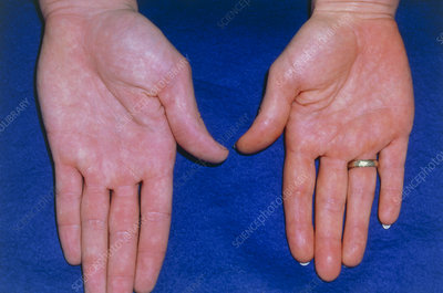 Hands of a person with the condition Xanthaemia
